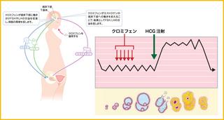 クロミフェン療法.jpg